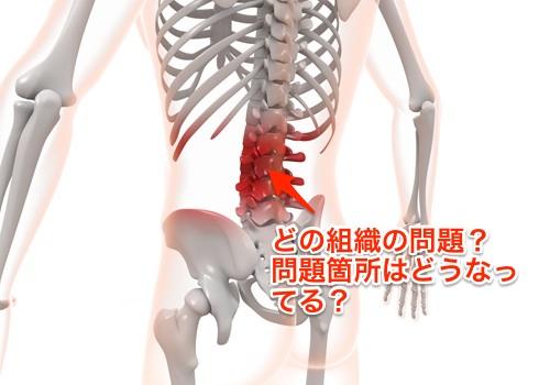 腰痛を分析