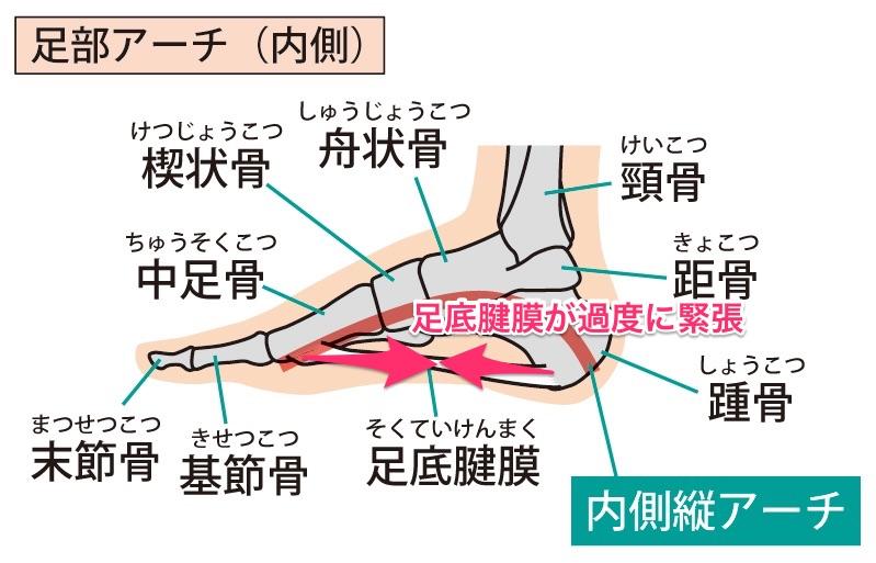 足底腱膜の緊張