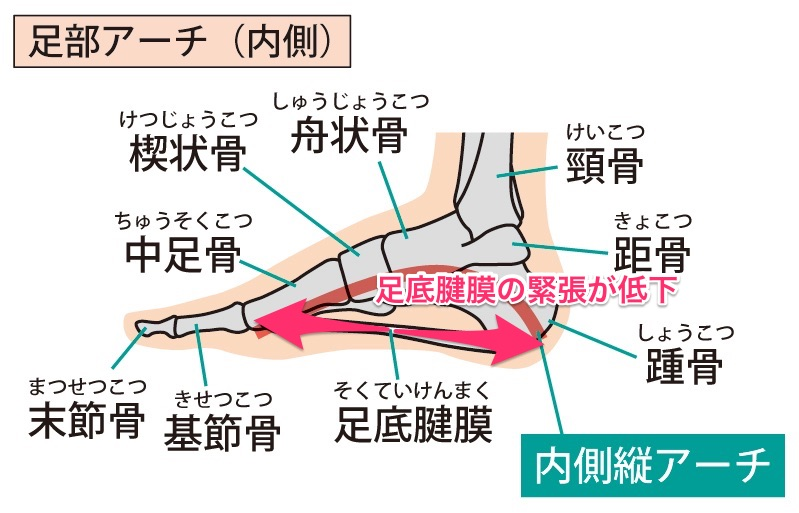 足底腱膜の緊張低下