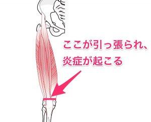 大腿四頭筋炎のイラスト