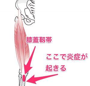 膝蓋靱帯炎のイラスト
