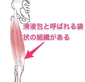 膝蓋上滑液包炎のイラスト