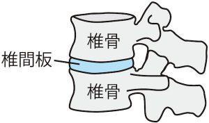 腰椎椎間板のイラスト