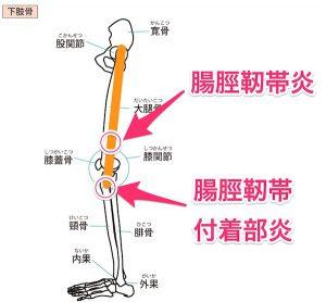 腸脛靭帯炎のイラスト