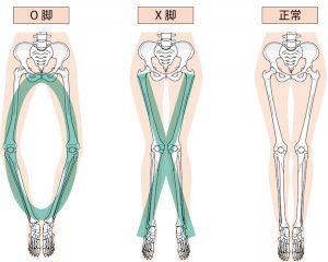 X脚とO脚のイラスト