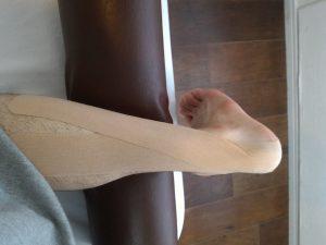 外側の腓腹筋に沿って貼る
